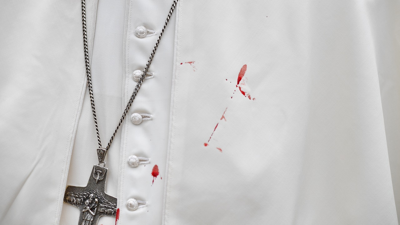 A few droplets of blood stain Pope Francis' white tunic from a bruise around his left eye and eyebrow caused by an accidental hit against the popemobile's window glass while visiting the old sector of Cartagena, Colombia on September 10, 2017. (Reuters)