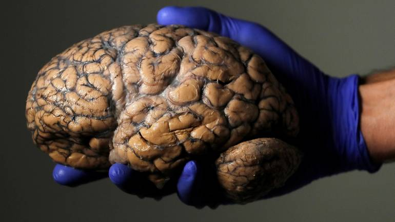 Scientists develop a brain implant that improves memory and recall ...