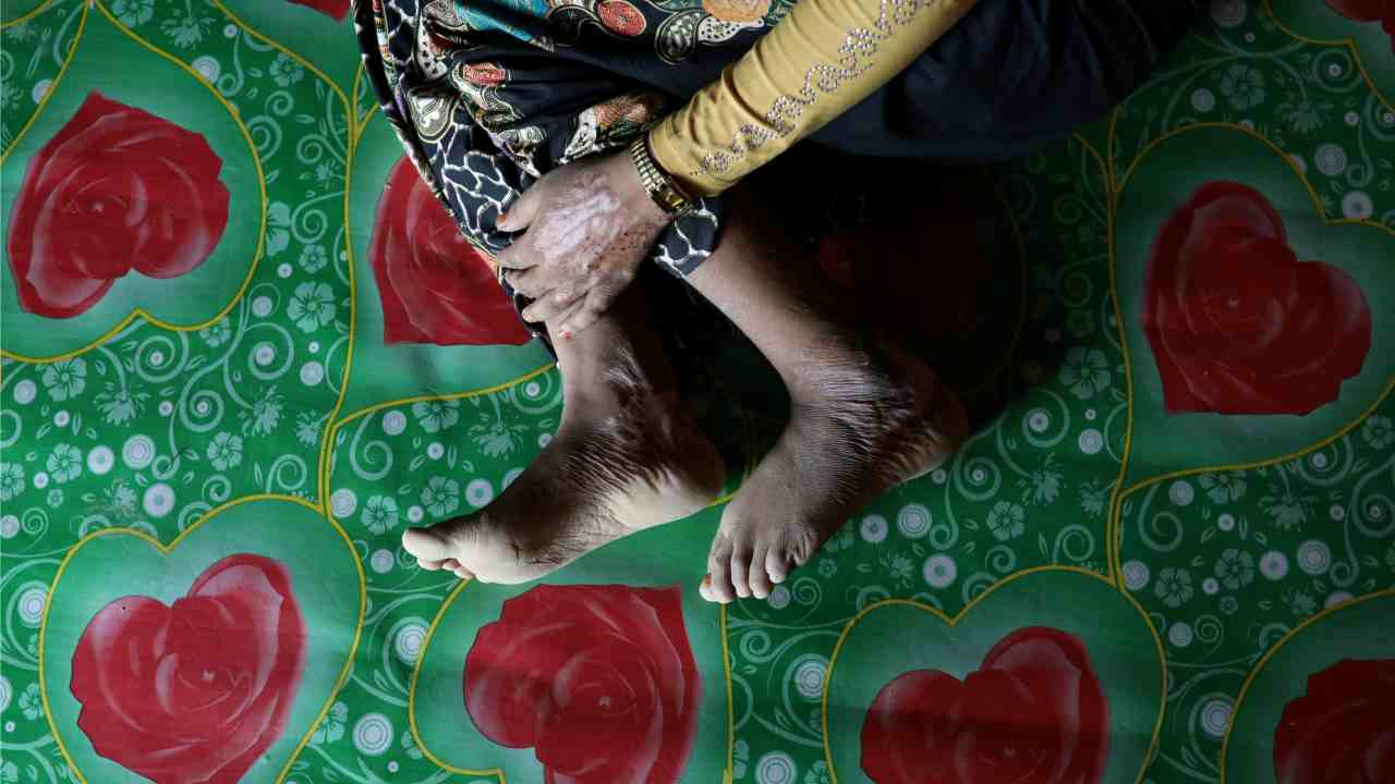 Begum, a Rohingya rape victim, shows her scars as she poses for a picture in Teknaf, Bangladesh. (Reuters)