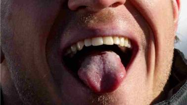 Pregnant wife bites off man's tongue while kissing as 'he was not good-looking'